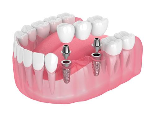 Bridge and Implant